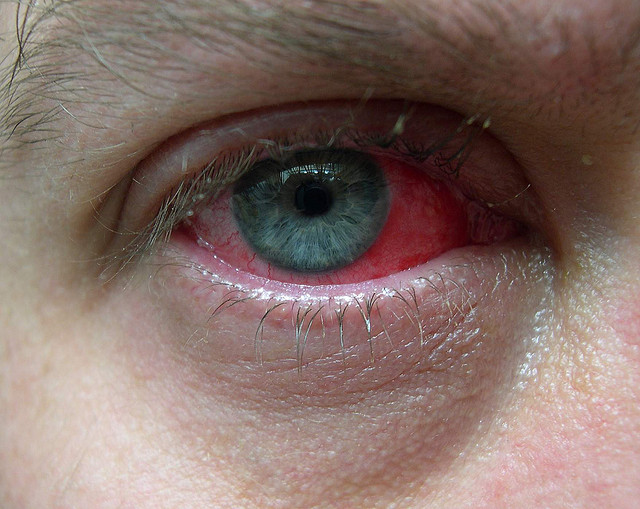 Conjunctivitis, Disease, virus, red, eye, one, illness, sickness, Ten Random Facts, Flickr